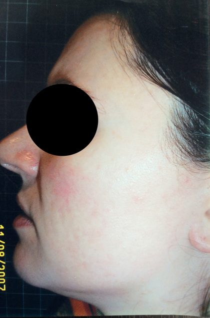 Microdermabrasion Before & After Patient #205
