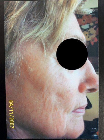 Microdermabrasion Before & After Patient #196