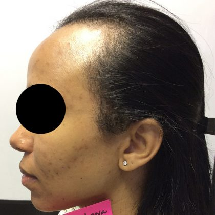 DermaSweep MD Before & After Patient #178