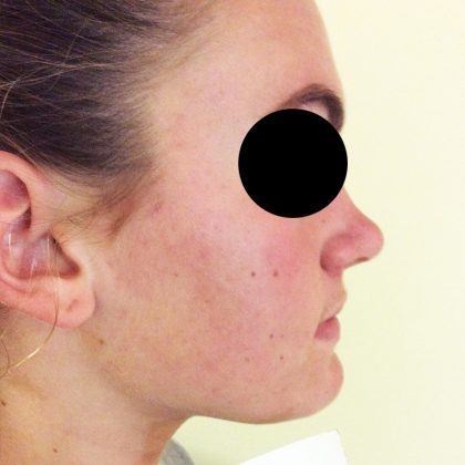 DermaSweep MD Before & After Patient #200